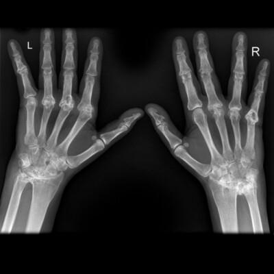 MRI hand