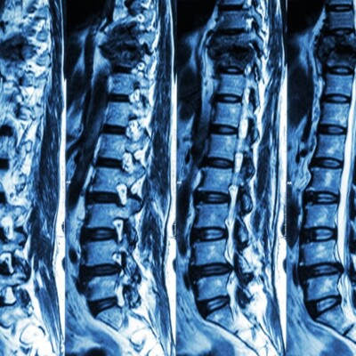X-ray of the spine