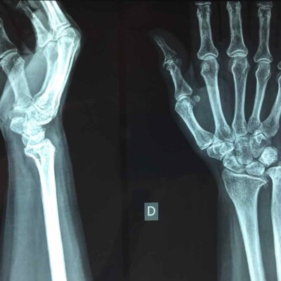 X-ray of hand and wrist