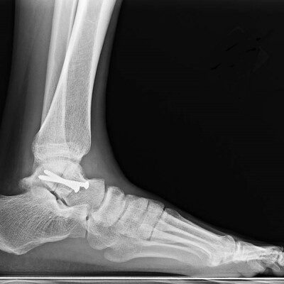 MRI foot and ankle