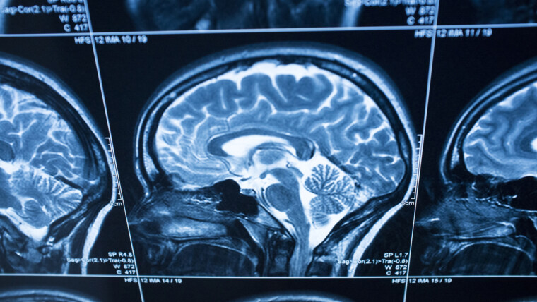When is it necessary to do an MRI?