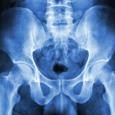 X-ray Pelvis