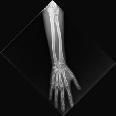 X-ray forearm